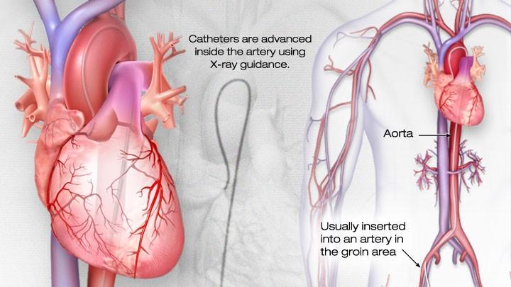 cardiaccath