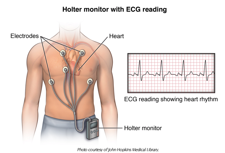 Holter heart rate monitor illustration